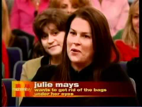 Non-Surgical Eye Lift – Rachel Ray Show