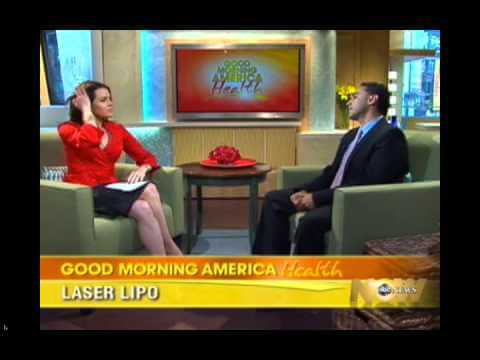 Laser Liposuction – ABC News