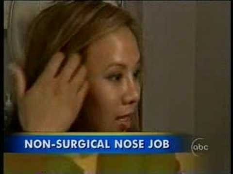 Non-surgical Nose Job – Good Morning America