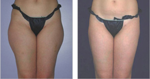 UltraShape. Before and After Treatment Photo: Woman patient (frontal view)
