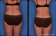 Zerona Laser. Before and After Photos - Female (back view)
