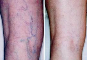 Asclera - Before and After Treatment Photos