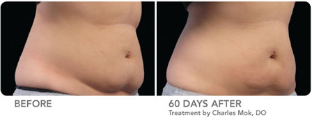 Long Island Coolsculpting Before and After