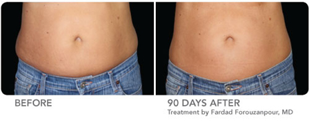 Actual CoolSculpting Patient Before and After