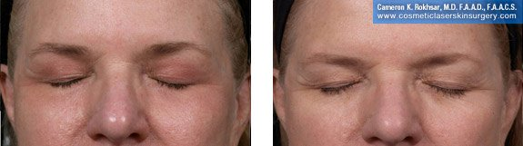 Fraxel Repair. Before and After Treatment Photos - Female, patient 5 (frontal view, closed eyes)