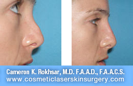 Non Surgical Nose Job - Before and After Photos: Patient 1 (right side view)