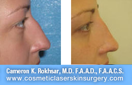 Non Surgical Nose Job - Before and After Photos: Patient 3 (right side view)