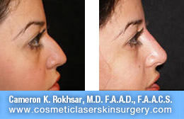 Non Surgical Nose Job - Before and After Photos: Patient 5 (right side view)