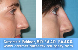 Non Surgical Nose Job - Before and After Photos: Patient 7 (right side view)