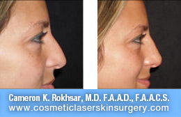 Non Surgical Nose Job - Before and After Photos: Patient 9 (right side view)