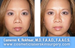Non Surgical Nose Job - Before and After Photos: Patient 13 (right side view)