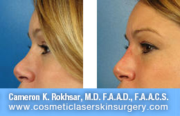Non Surgical Nose Job - Before and After Photos: Patient 14 (right side view)