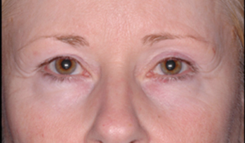 Ultherapy 90 Days Post-Procedure Photo: Female (frontal view)