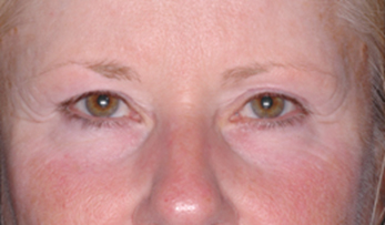 Ultherapy Pre-Treatment Photo: Female (frontal view)