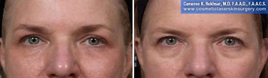 Eyelid Rejuvenation in New York. Before and After Treatment Photos - Female, frontal view. Patient 11