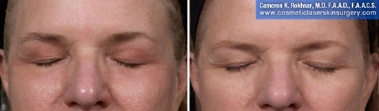Eyelid Rejuvenation in New York. Before and After Treatment Photos - Female, frontal view. Patient 10