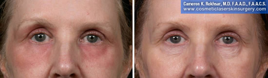 Eyelid Rejuvenation in New York. Before and After Treatment Photos - Female, frontal view. Patient 9