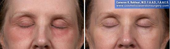 Eyelid Rejuvenation in New York. Before and After Treatment Photos - Female, frontal view. Patient 8