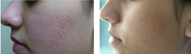 Get rid of acne scars new york nyc long island with dr rokhsar acneacne scars ccuart Choice Image