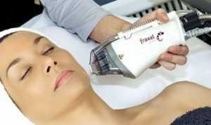 Fraxel-treatment-300x178