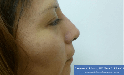 Non Surgical Nose Job Images - After Treatment Photo - patient 4