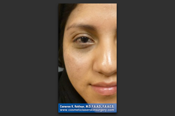 Age Spot and Brown Spot Treatment - After Treatment Photo - patient 1