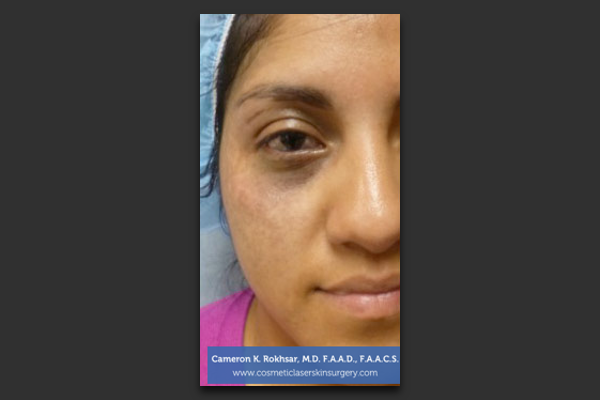 Age Spot and Brown Spot Treatment - Before Treatment Photo - patient 1