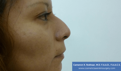 Non Surgical Nose Job Images - Before Treatment Photo - patient 4