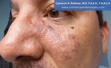 Birthmark Removal Gallery - After Treatment Photo - patient 3