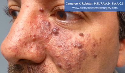 Birthmark Removal Gallery - Before Treatment Photo - patient 3