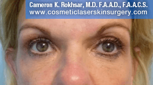Blepharoplasty - After Treatment Photo: female, front view, patient 1