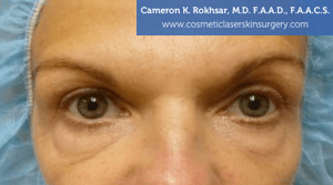 Blepharoplasty - Before Treatment Photo: female, front view, patient 1