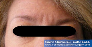 Botox. After Treatment photo, front view, female patient 8