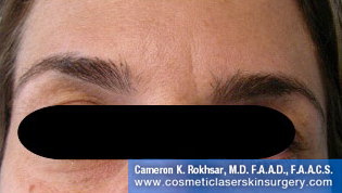 Botox After Treatment Photo - patient 3
