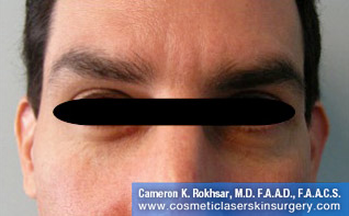 Botox. After Treatment photo, front view, male patient 4