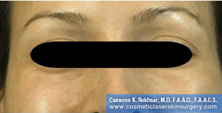 Botox. After Treatment photo, front view, female patient 2
