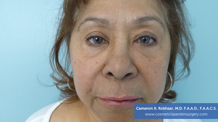 Injectables After Treatment Photos: Female - frontal view (Botox to Remove Wrinkles)