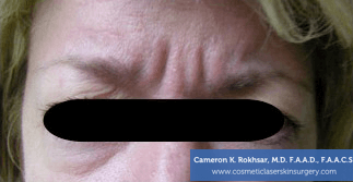 Botox. Before Treatment photo, front view, female patient 8