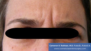 Botox Before Treatment Photo - patient 3