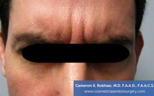 Botox. Before Treatment photo, front view, male patient 4