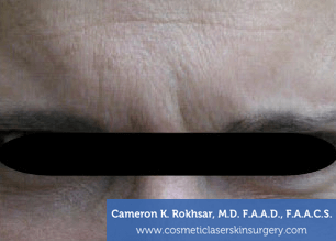 Botox. Before Treatment photo, front view, male patient 3