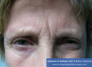 Botox Before Treatment Photo - patient 1