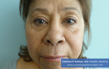 Botox Before Treatment Photo - patient 4