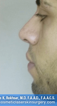 Non-Surgical Chin Job - After Treatment photo, male - left side view, patient 4