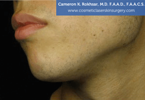 Non-Surgical Chin Job - After Treatment photo, female - left side view, patient 9