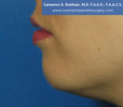 Non-Surgical Chin Job - Before Treatment photo, female - left side view, patient 7