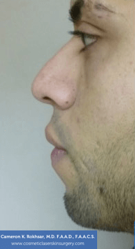 Non-Surgical Chin Job - Before Treatment photo, male - left side view, patient 4