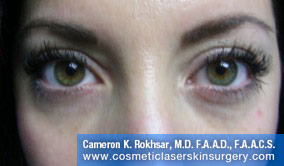Non-Surgical Eye Lift - After Treatment Photo - patient 5