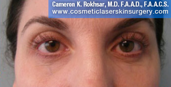 Non-Surgical Eye Lift. After Treatment Photo - front view, female patient 8