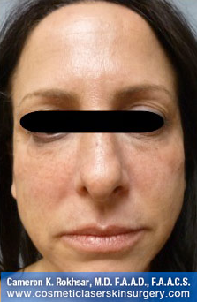 Non-Surgical Eye Lift. After Treatment Photo - front view, female patient 6
